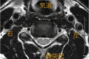 頸椎MRIのイメージ画像