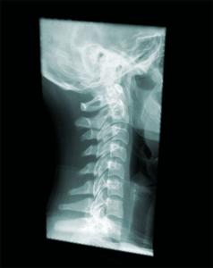 頸椎レントゲン